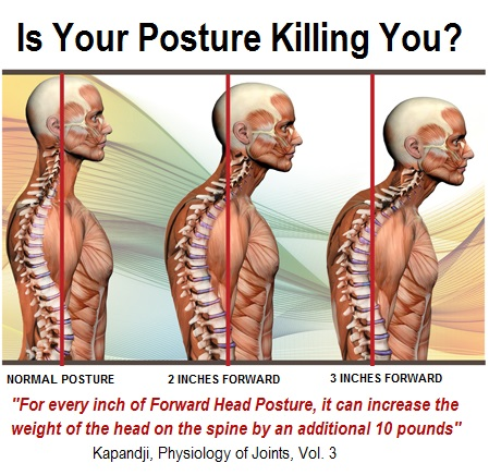 Posture Now Brace For Better Posture – Review (Apr. 2018)